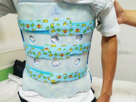 脊柱乐天堂线上娱乐网适合哪些患者使用?